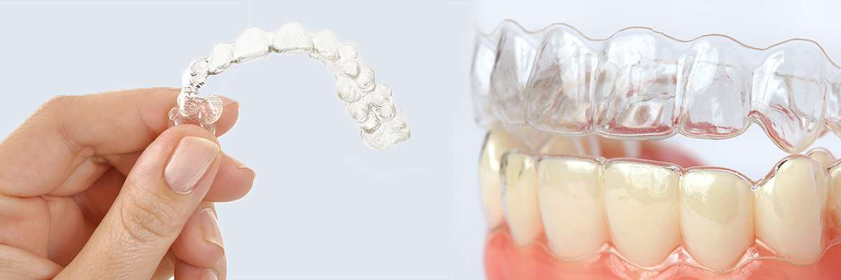 Springville Alternative to Braces for Teens
