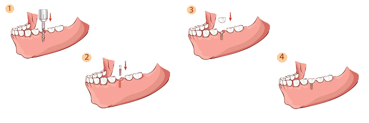 Springville The Dental Implant Procedure