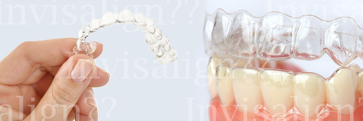 Springville Does Invisalign® Really Work?