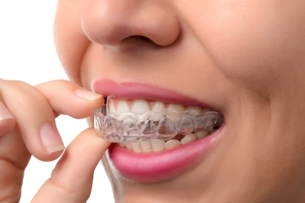 Questions For An Invisalign® Dentist In Springville