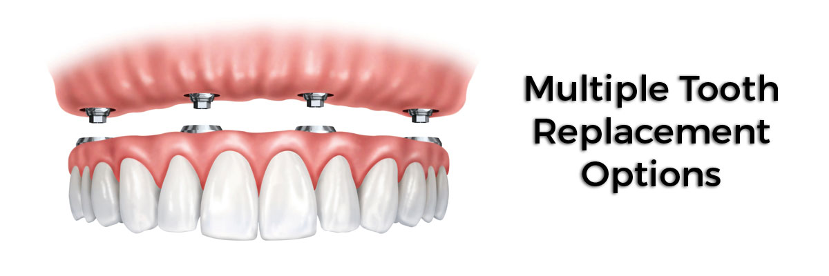 Springville Multiple Teeth Replacement Options