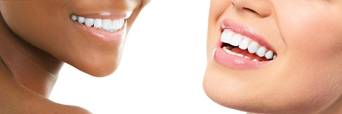 Springville Teeth Whitening