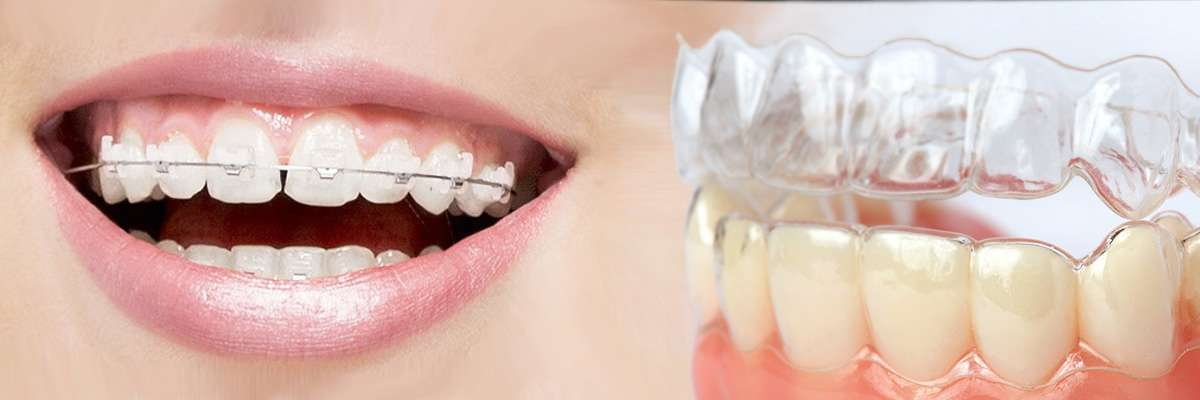 Springville Which is Better Invisalign or Braces
