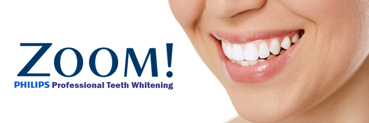 Springville Zoom Teeth Whitening